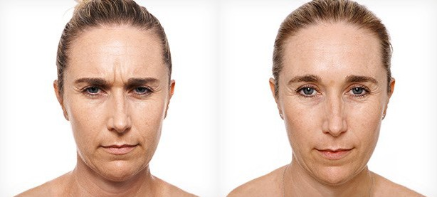 beforeafterantiwrinkleinjections2