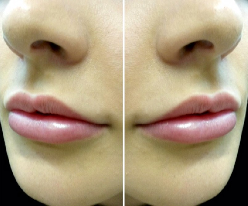 One of our 'lip beauties' after lip enhancement