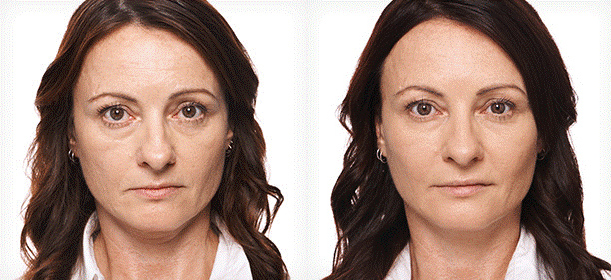 BEFORE and AFTER – LIQUID FACELIFT – Wrinkle Relaxers & Fillers