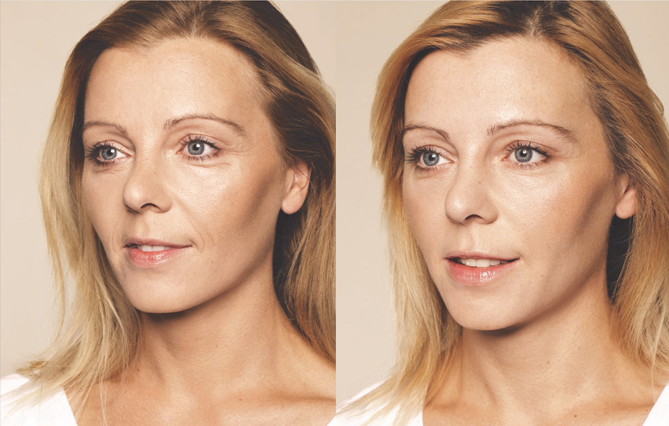 BEFORE & AFTER Skin Booster Treatments
