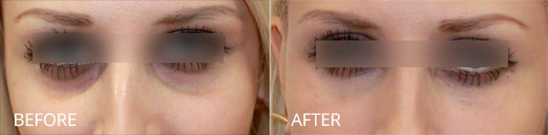Tear Trough Deformity Correction before and after