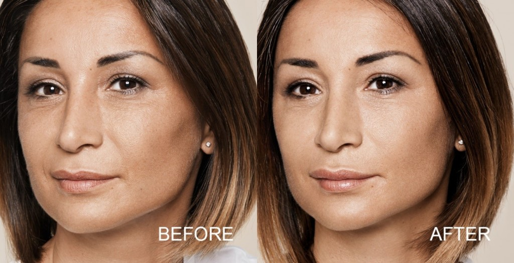 Cosmetic Injections - About Face Cosmetic Studio & Skin